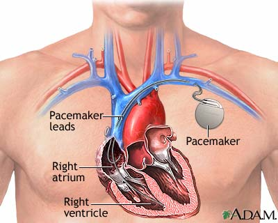 Pacemakers and induction hobs
